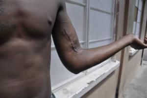Ein Mitglied einer Gang zeigt seine Narbe nach einer Schießerei.